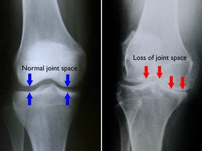 Loss of Joint Space